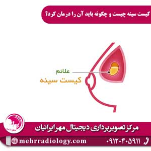 کیست سینه چیست و چگونه باید آن را درمان کرد؟